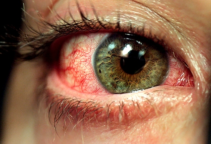 _blood shot eye